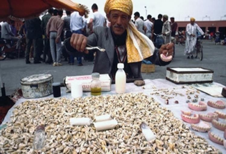 طب الأسنان في المغرب: 3300 شخص يزاولون التطبيب بشكل غير قانوني