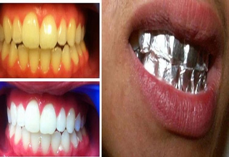 هكذا تحصلين على أسنان ناصعة البياض خلال ساعة واحدة!!