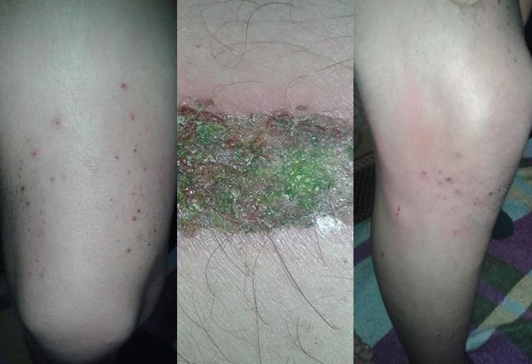 بالصور..مرض خطير يصيب الأطفال بجماعة أونان إقليم شفشاون