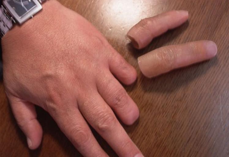 قطعت أصابع زوجها والسبب لا يصدق